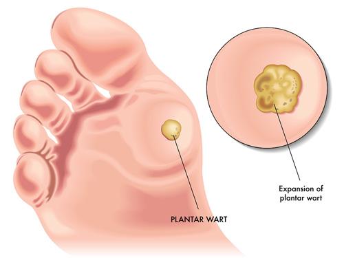 dezintoxicarea colonului