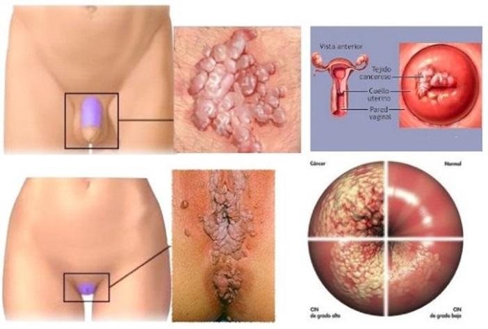 hpv virus precancerous cells