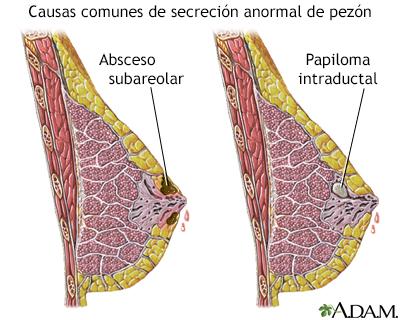 Intraductal san papiloma