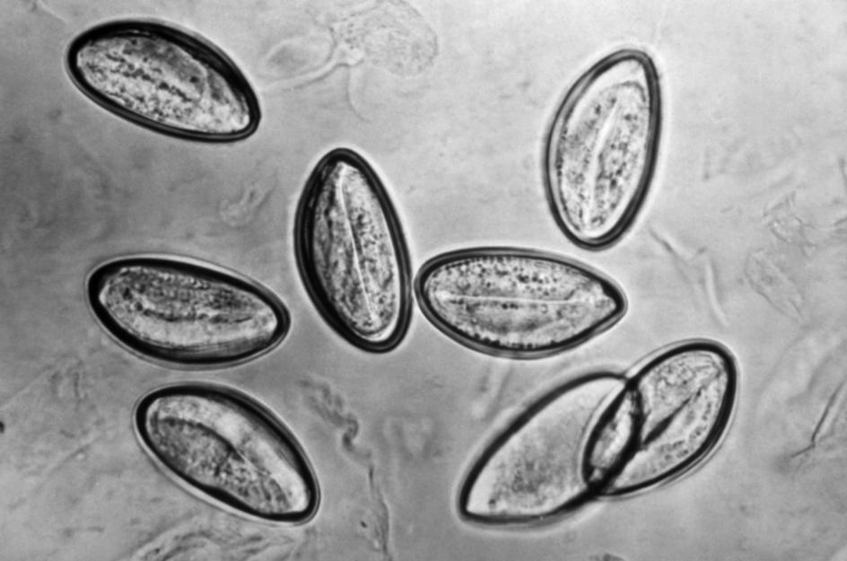 que son los huevos de oxiuros parazitii rau sau bun lyrics