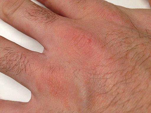 dermatite cane warts on hands during pregnancy