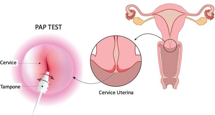 referto pap test flogosi e papilloma