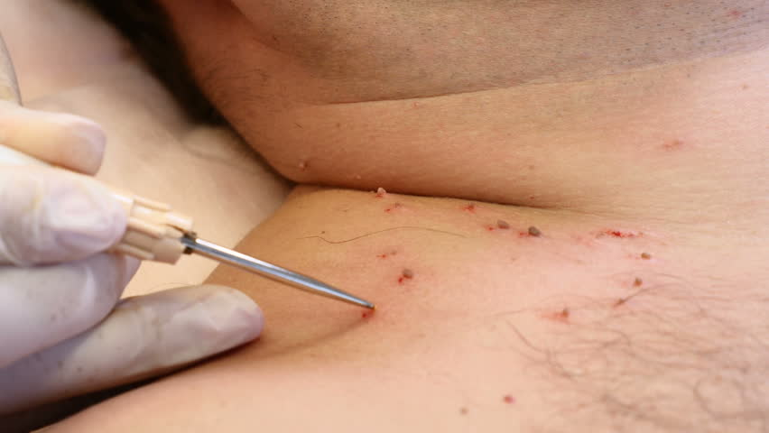 removal of papilloma