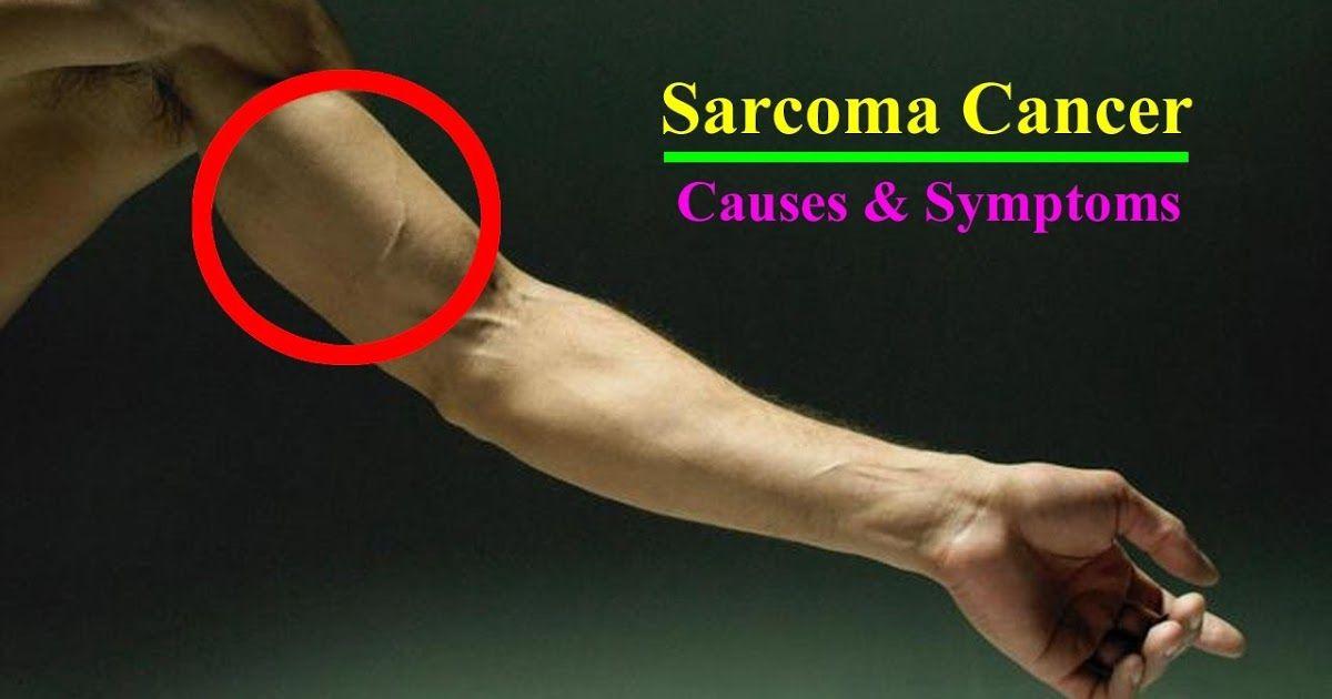 sarcoma cancer cause detoxifiere 2 saptamani