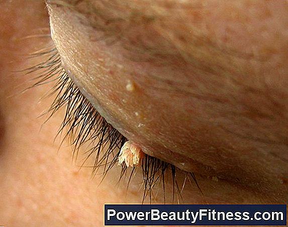 sintomi papilloma virus nelle donne