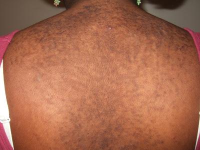 skin papillomatosis treatment hpv genital warts cause throat cancer