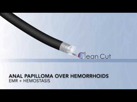 squamous papilloma colonoscopy breast cancer genetic or environmental