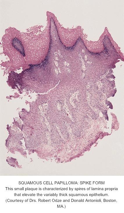 squamous papilloma esophagus location cancerul de san dupa operatie