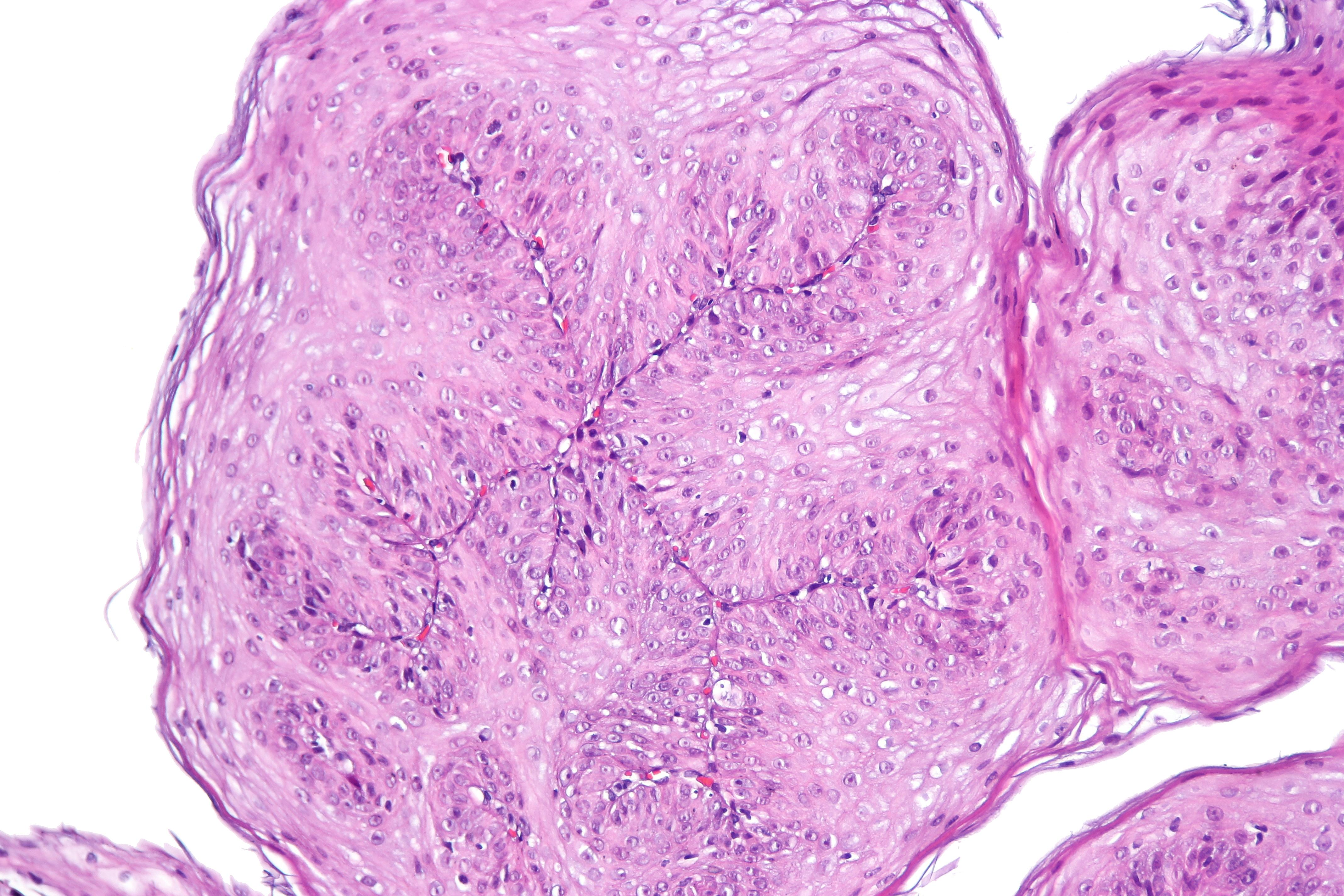 squamous papilloma of esophagus respiratory papillomatosis histopathology