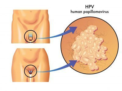 symptoms of hpv papilloma papilloma virus umano