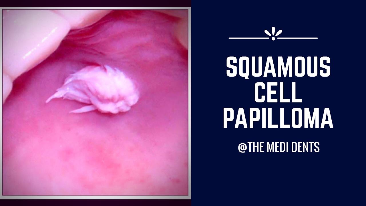 tagalog of papillomas vestibular papillomatosis swollen