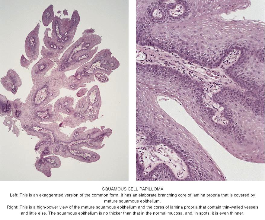 tongue papilloma pathology outlines papilloma of the hard palate