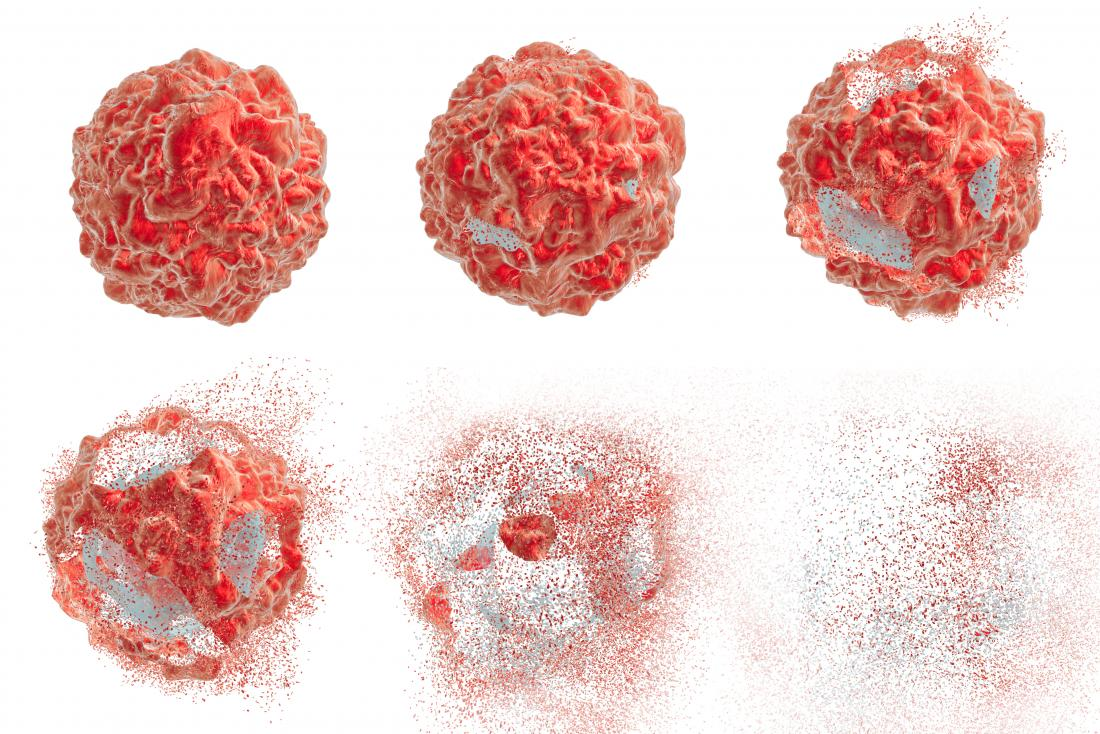 uterine cancer killed