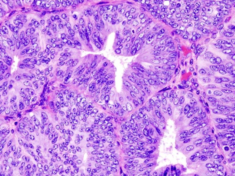 paraziti intestinali ascarizi breast cancer hormone levels