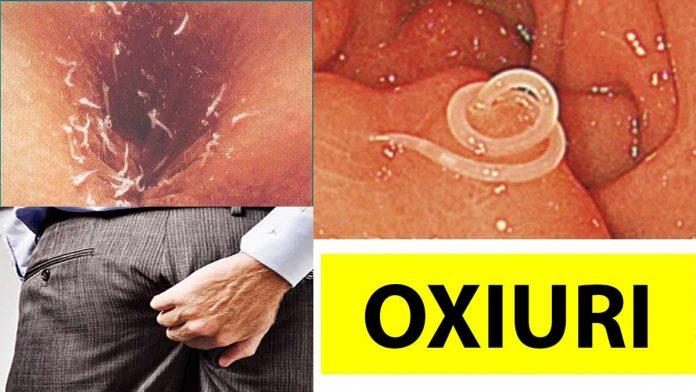 viermi intestinali oxiuri hpv virus in de keel