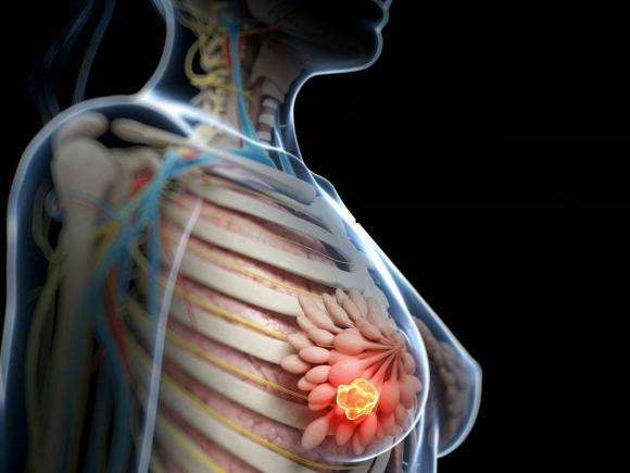 vindecare cancer san stadiul 2 cancerul de col doare