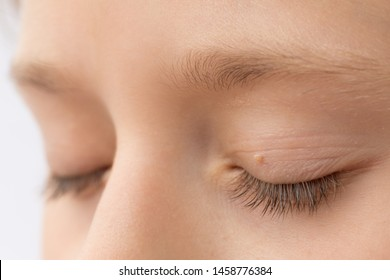 viral papilloma eyelid treatment virus papiloma humano fase 1