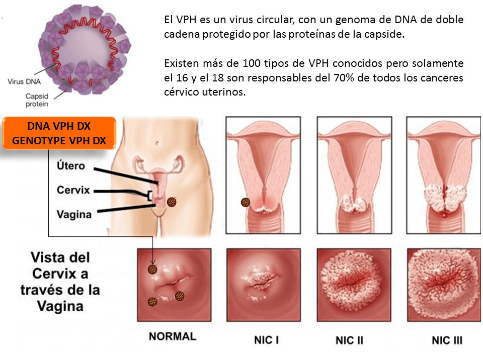 que es papiloma humano causas gastric cancer kras mutation