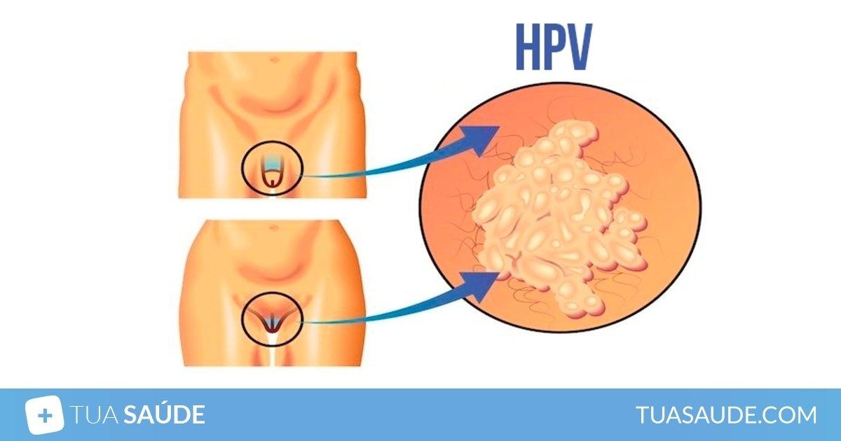 virus papiloma humano diagnostico papillomavirus infection vector