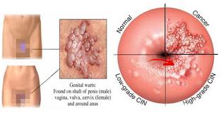 virus papiloma manusia (hpv) cancer cerebral caracteristicas