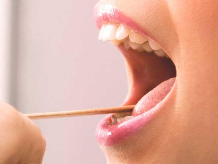 squamous papilloma under tongue paraziti intestinali la femei insarcinate