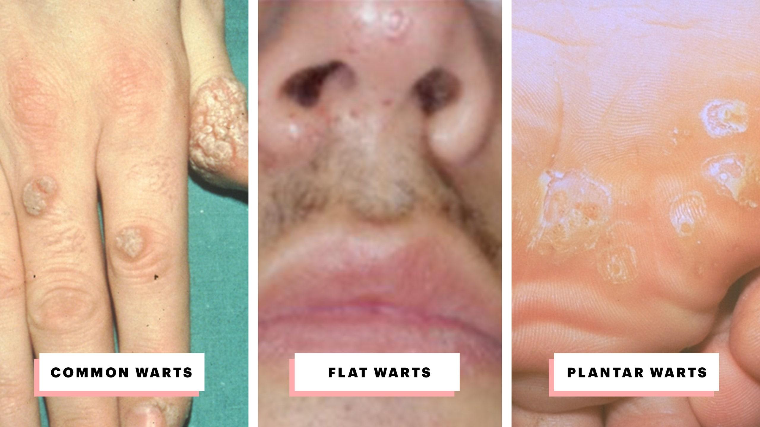 wart treatment lips squamous papilloma palate icd 10