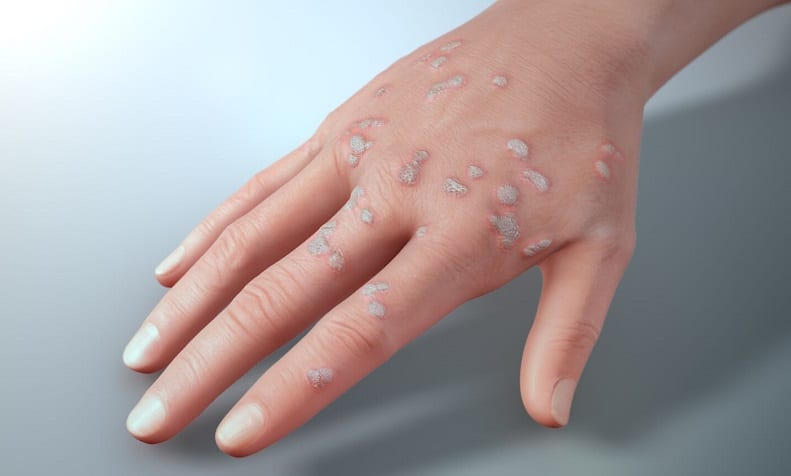 warts on hands adults