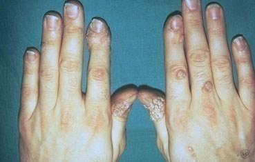 warts on my hands are spreading cancer cerebral glioma